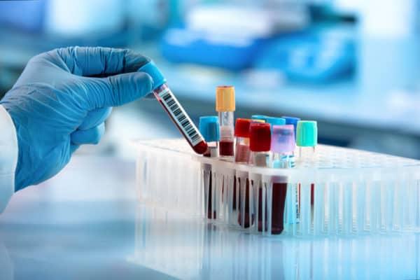 Blood-samples-in-lab-test-tubes